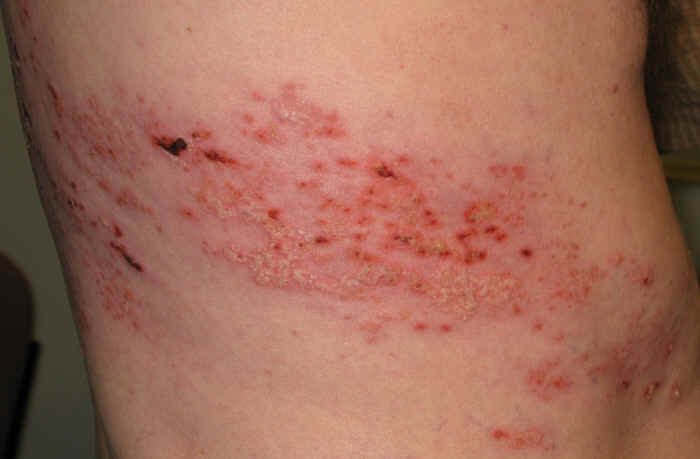 Shingles Treatment – Muscleworx Clinic – Mark Mc Cormick