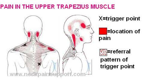 Headaches & TMJ Dysfunction – Muscleworx Clinic – Mark Mc ...