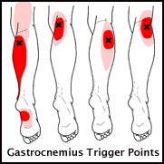 trigger points in calf muscles that can cause pain in heal & sole of foot