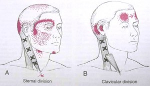 trigger point referral patterns sternocleidomastoid